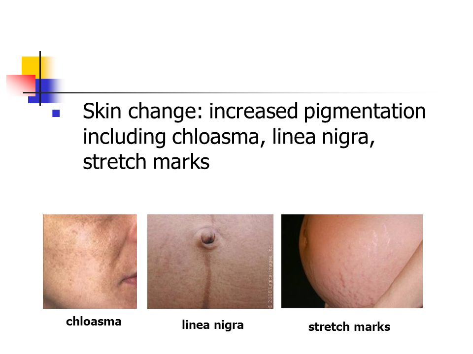 Skin change: increased pigmentation including chloasma, linea nigra, stretch marks