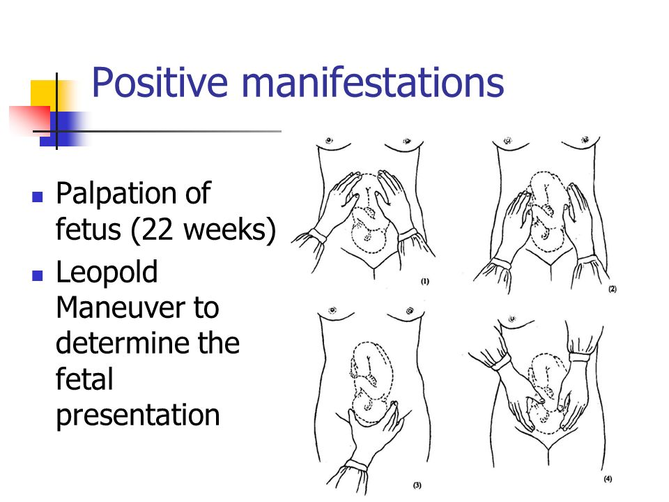 Positive manifestations