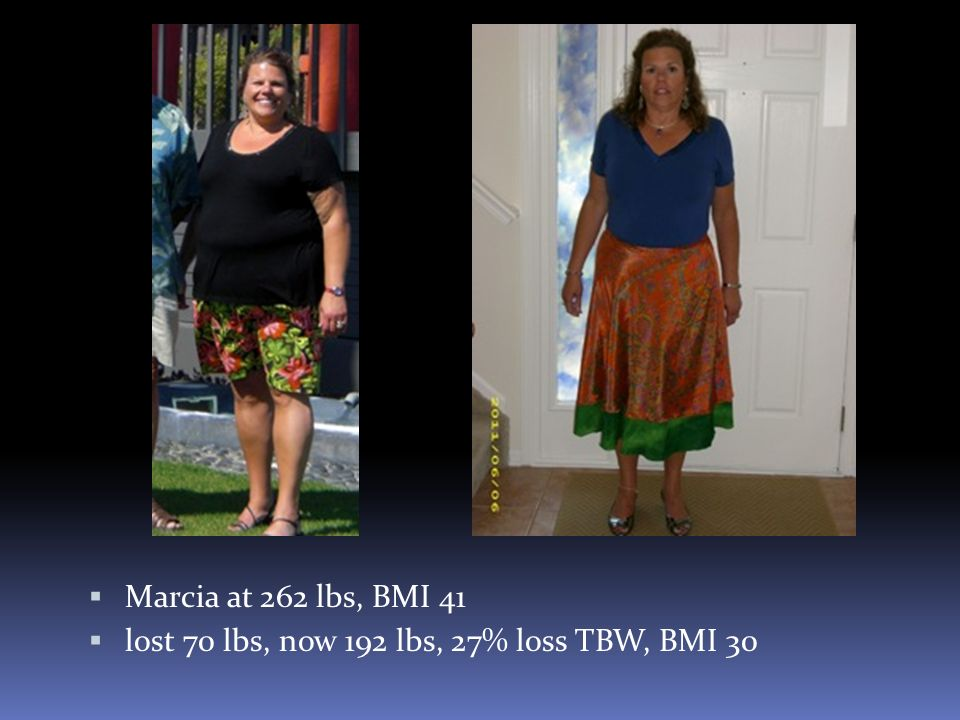 Marcia at 262 lbs, BMI 41 lost 70 lbs, now 192 lbs, 27% loss TBW, BMI 30
