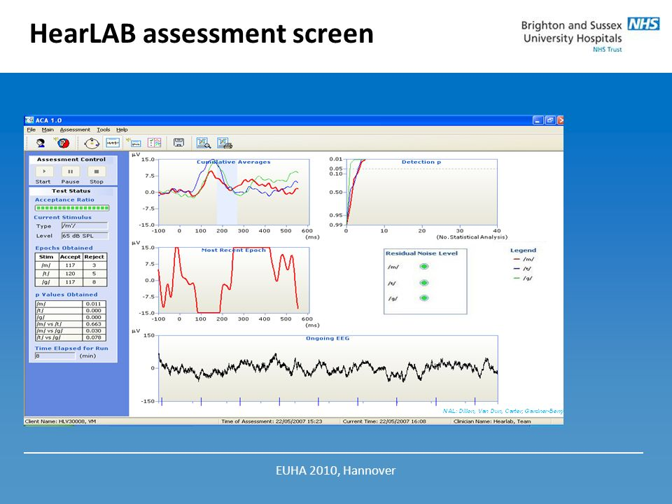 HearLAB assessment screen