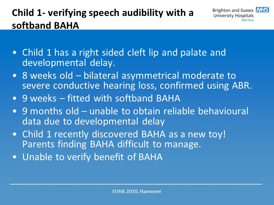 Child 1- verifying speech audibility with a softband BAHA