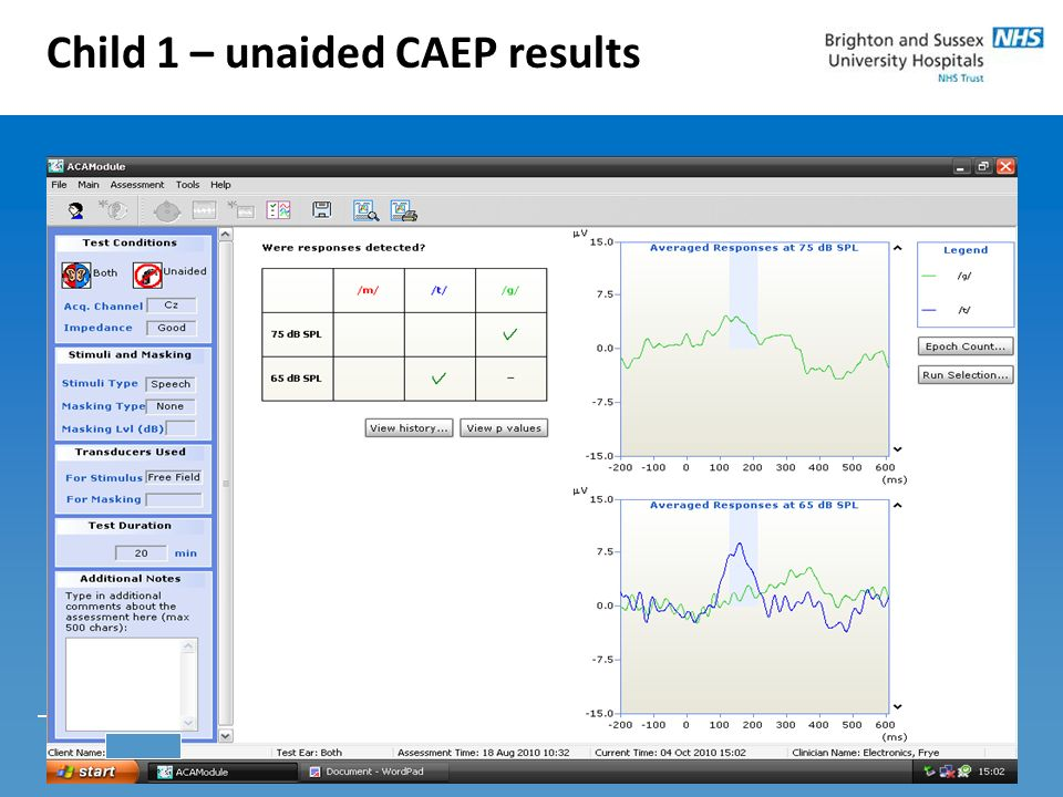 Child 1 – unaided CAEP results