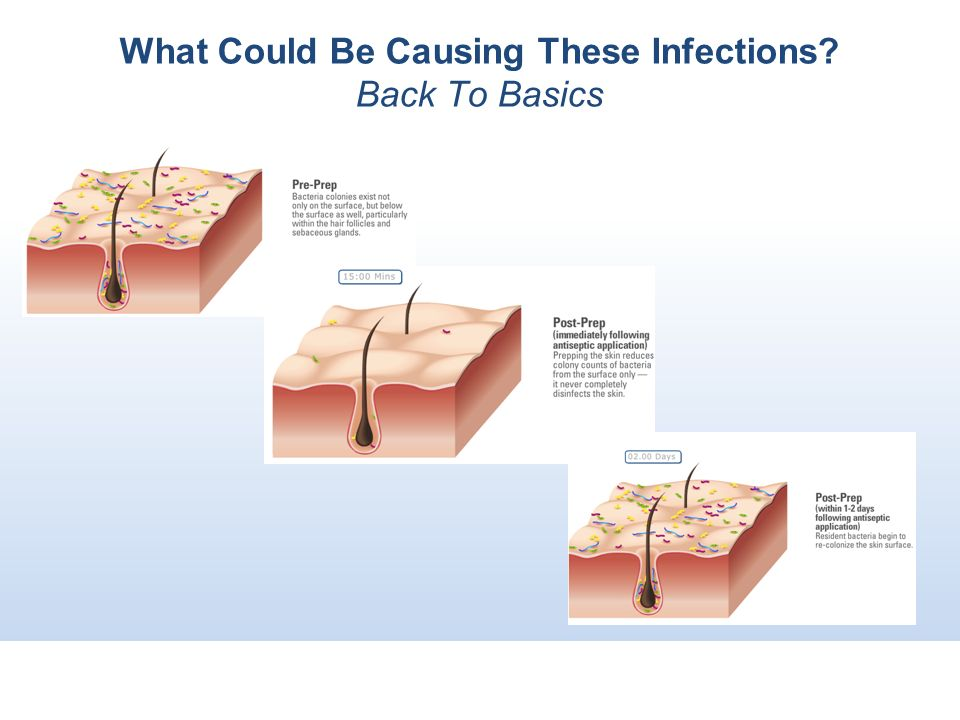 What Could Be Causing These Infections Back To Basics