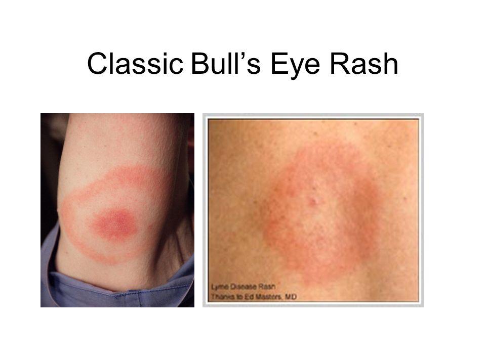 Classic Bull's Eye Rash