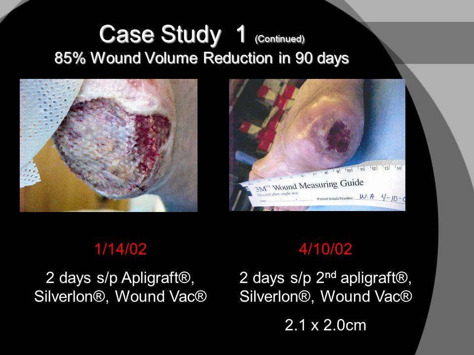 Case Study 1 (Continued) 85% Wound Volume Reduction in 90 days