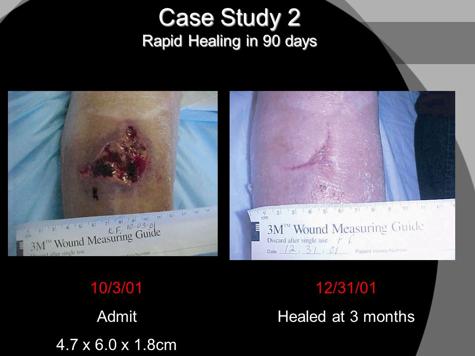 Case Study 2 Rapid Healing in 90 days