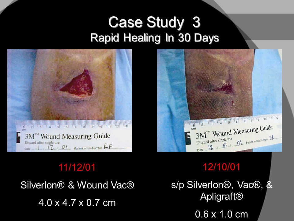 Case Study 3 Rapid Healing In 30 Days