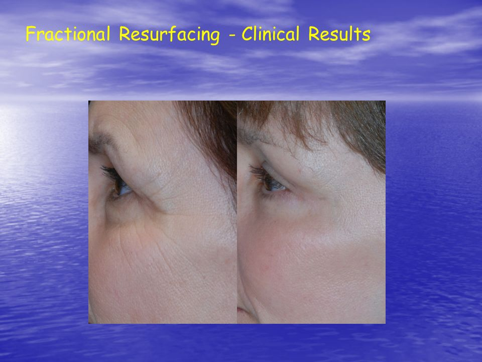 Fractional Resurfacing - Clinical Results