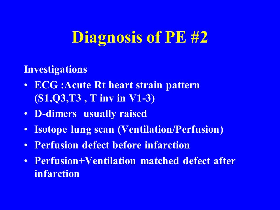 Diagnosis of PE #2 Investigations