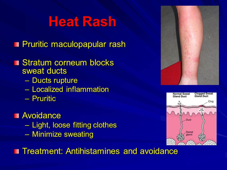 Heat Rash Pruritic maculopapular rash