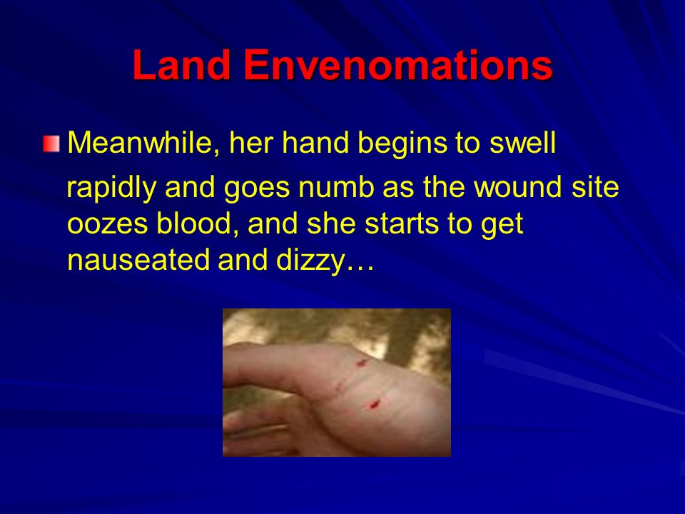 Land Envenomations Meanwhile, her hand begins to swell