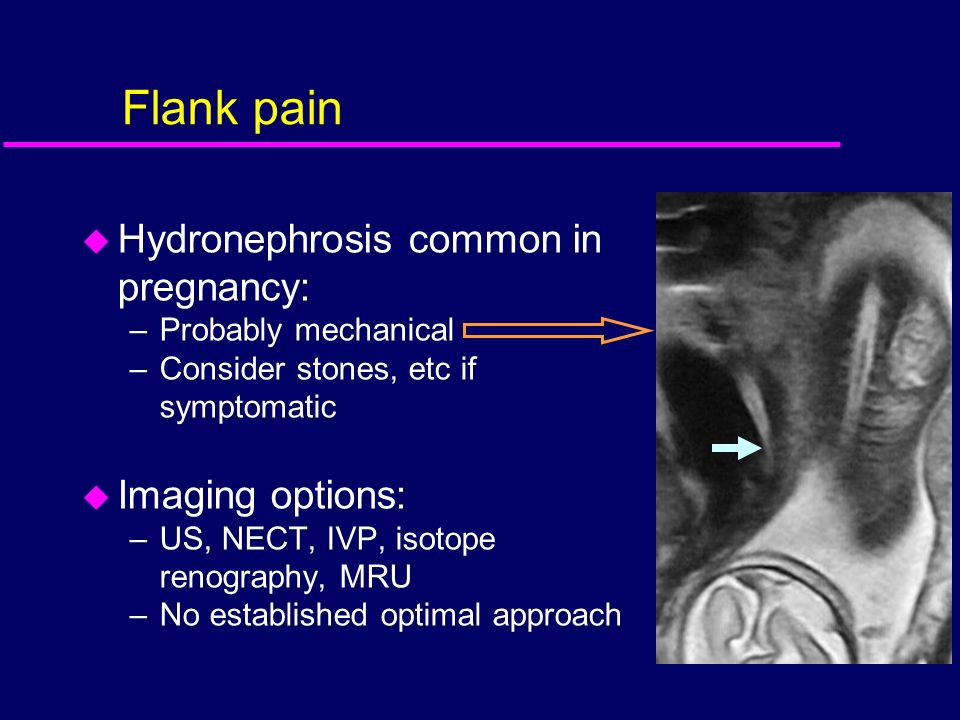 Flank pain Hydronephrosis common in pregnancy: Imaging options: