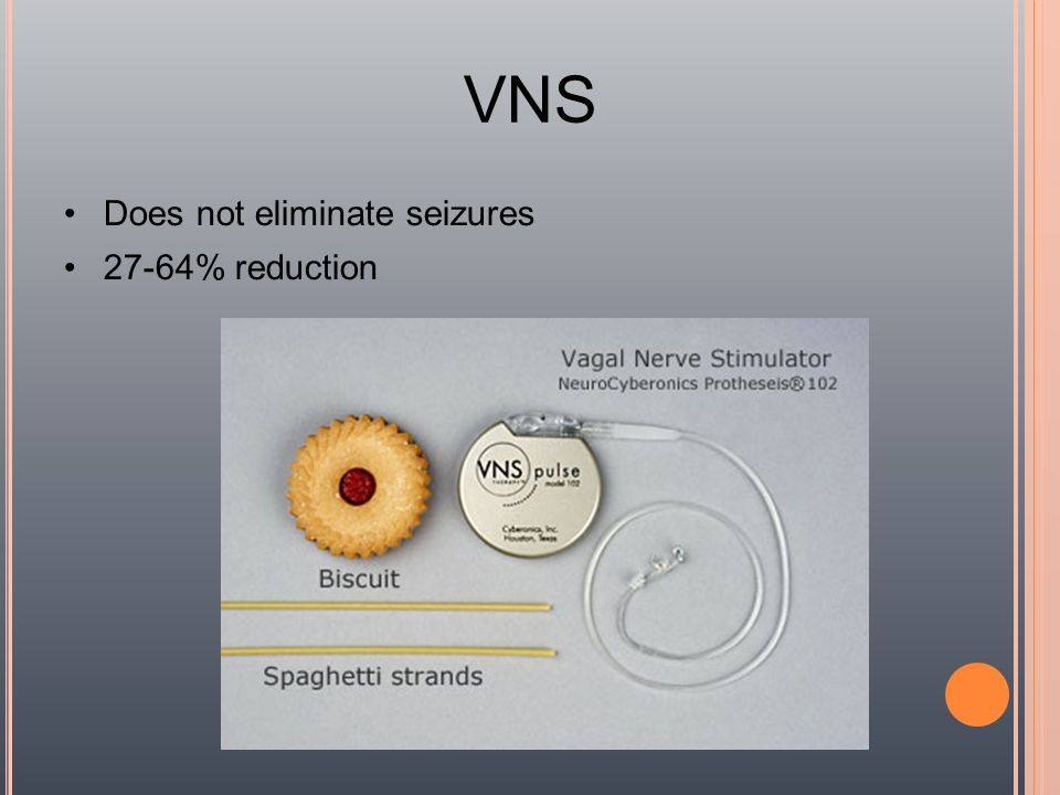 VNS Does not eliminate seizures 27-64% reduction 52