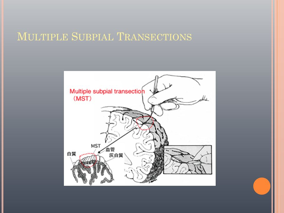 Multiple Subpial Transections