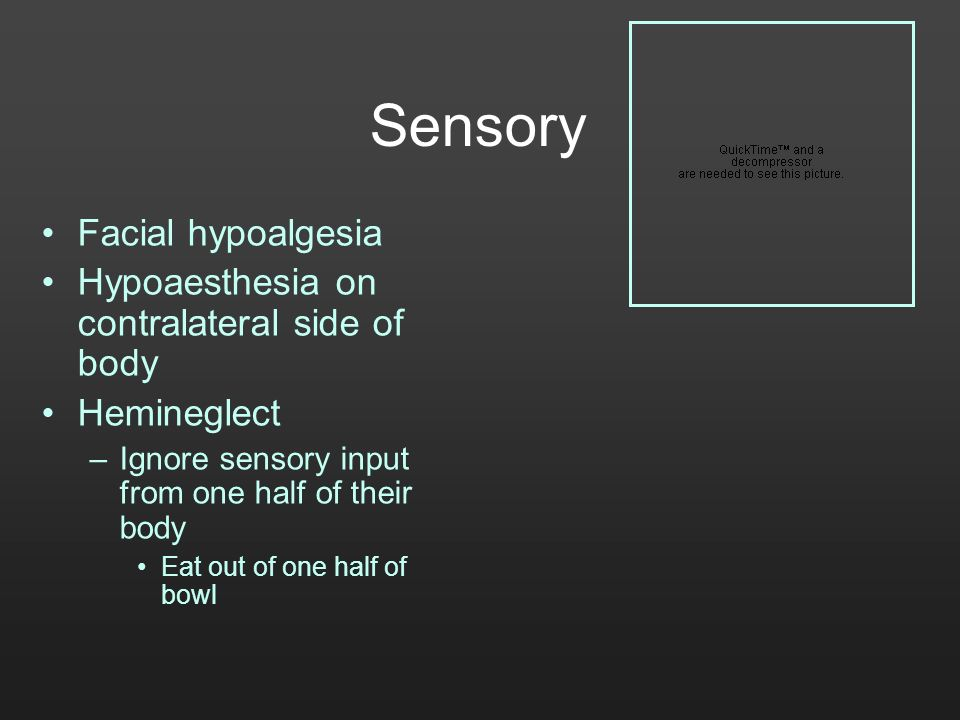 Sensory Facial hypoalgesia Hypoaesthesia on contralateral side of body