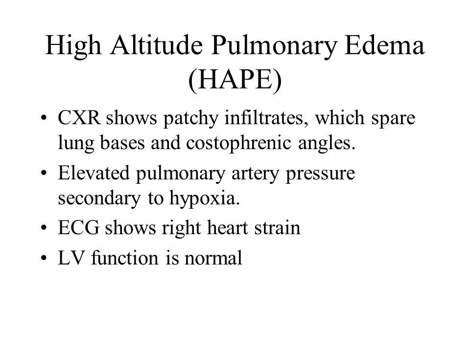 High Altitude Pulmonary Edema (HAPE)