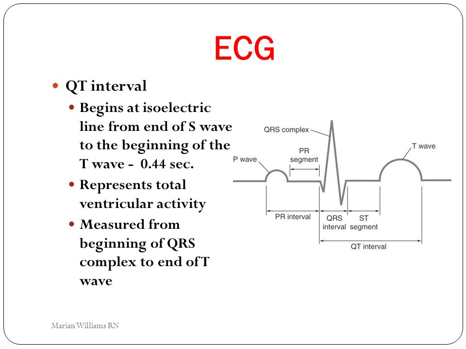 ECG QT interval. Begins at isoelectric line from end of S wave to the beginning of the T wave - 0.44 sec.