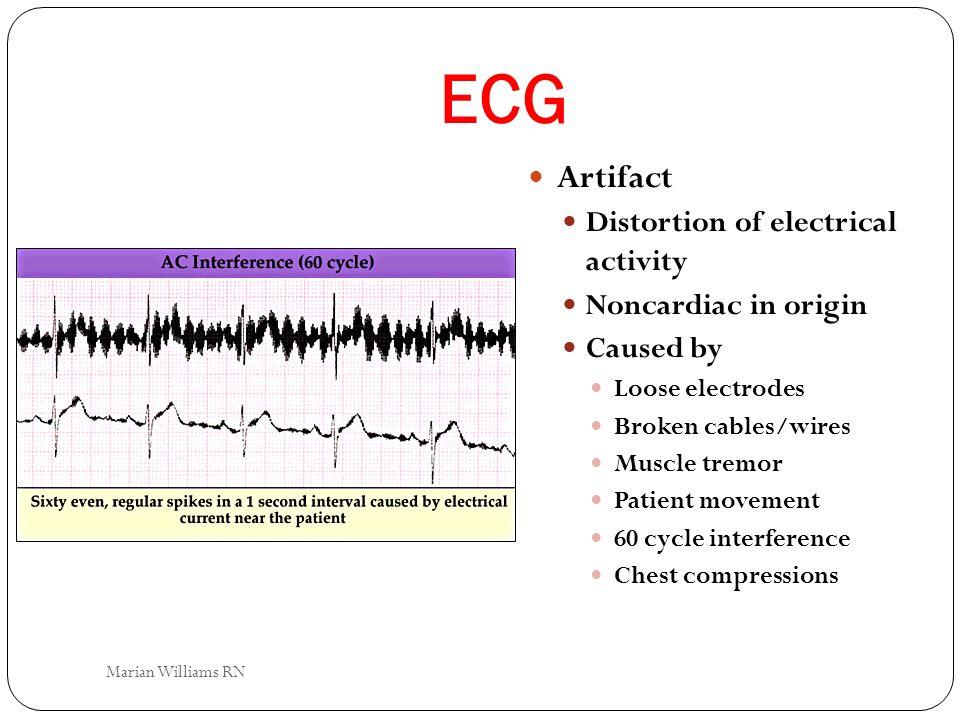 ECG Artifact Distortion of electrical activity Noncardiac in origin