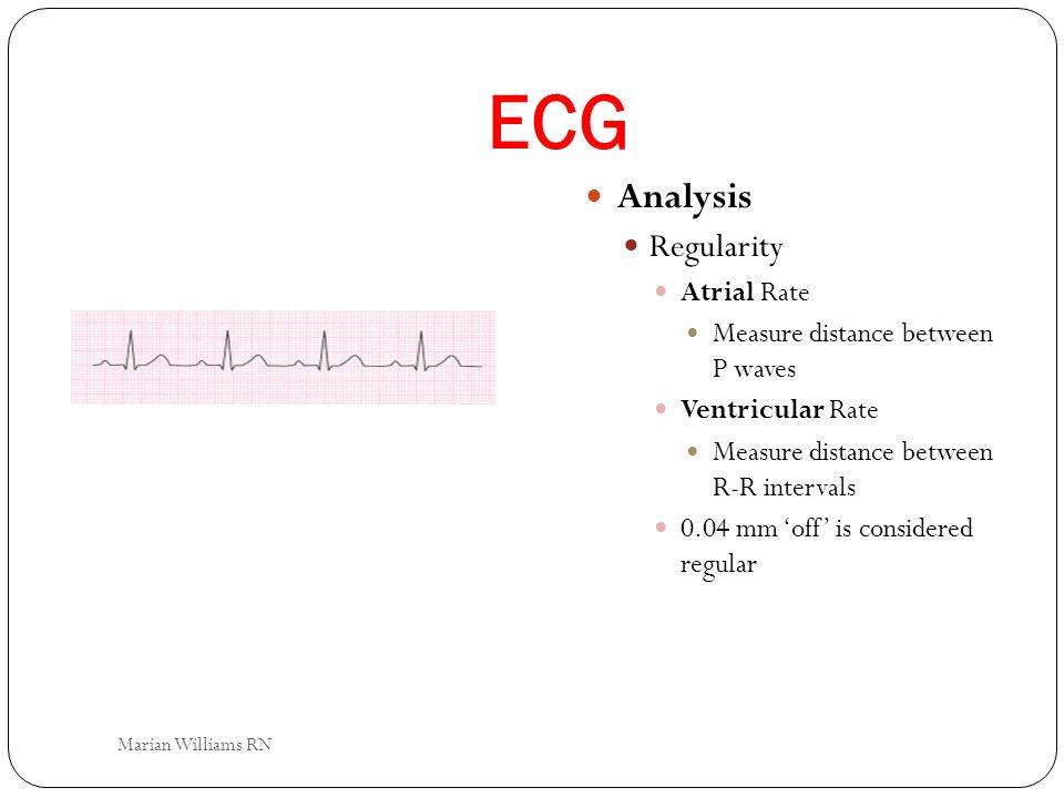 ECG Analysis Regularity Atrial Rate Measure distance between P waves