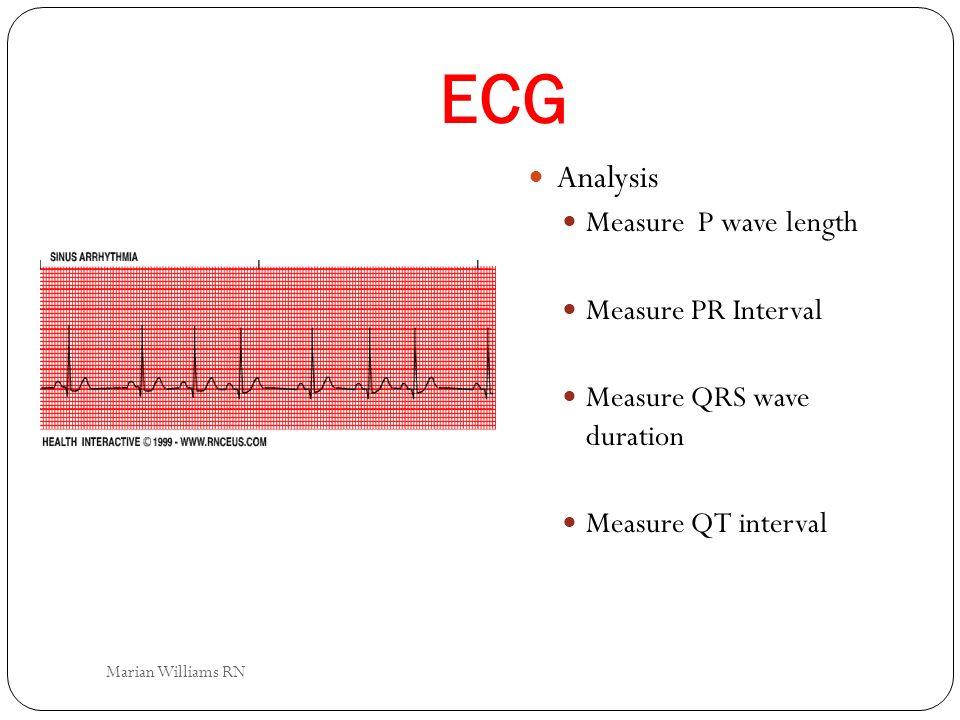 ECG Analysis Measure P wave length Measure PR Interval