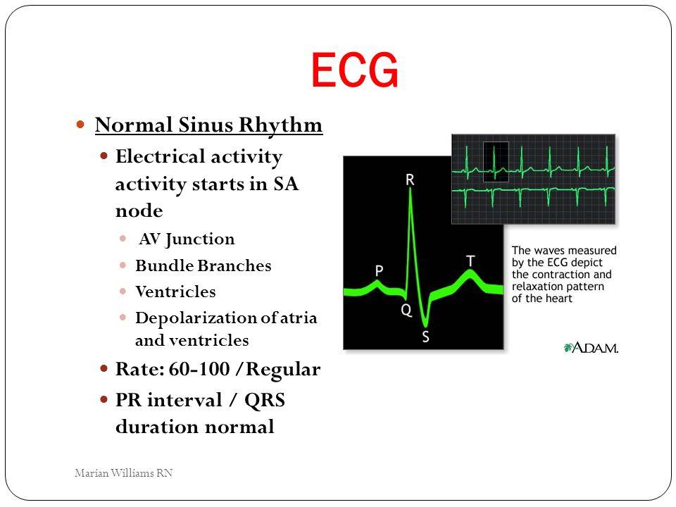ECG Normal Sinus Rhythm Electrical activity activity starts in SA node