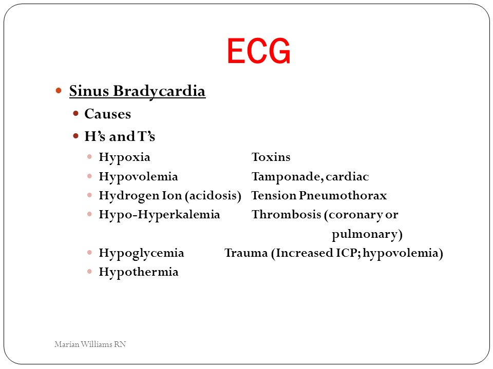 ECG Sinus Bradycardia Causes H's and T's Hypoxia Toxins