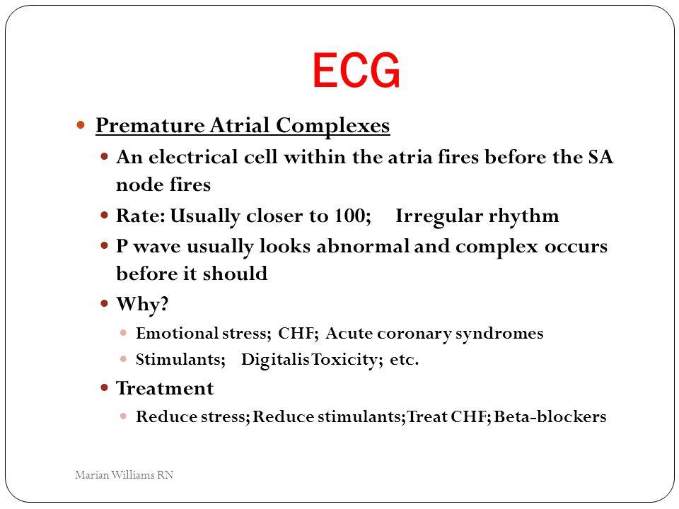 ECG Premature Atrial Complexes