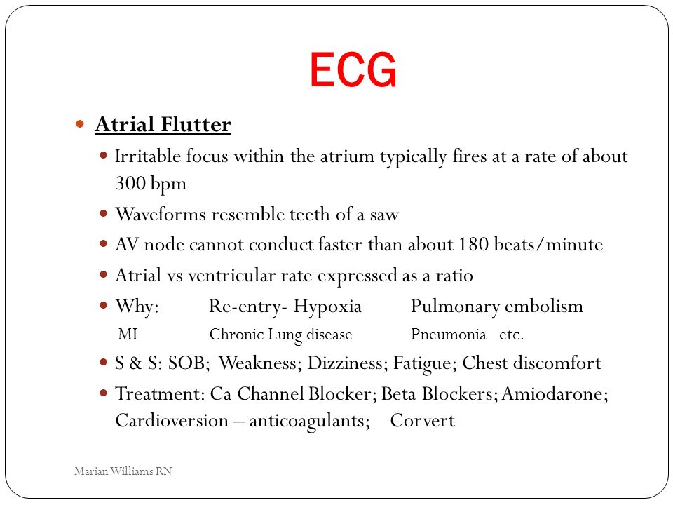 ECG Atrial Flutter. Irritable focus within the atrium typically fires at a rate of about 300 bpm.