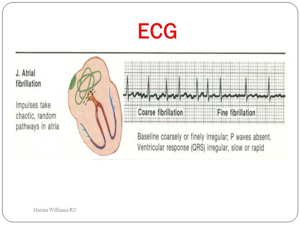ECG Marian Williams RN