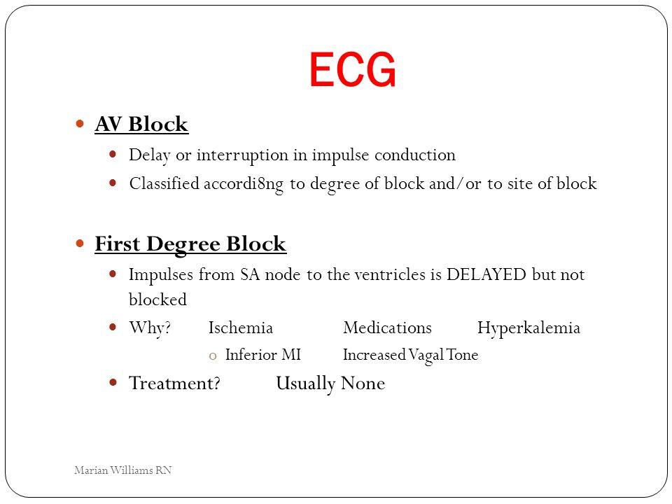 ECG AV Block First Degree Block Treatment Usually None