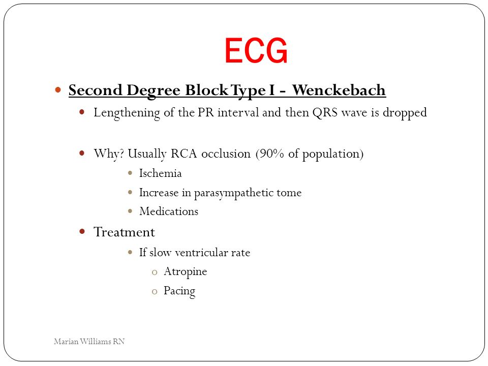 ECG Second Degree Block Type I - Wenckebach Treatment