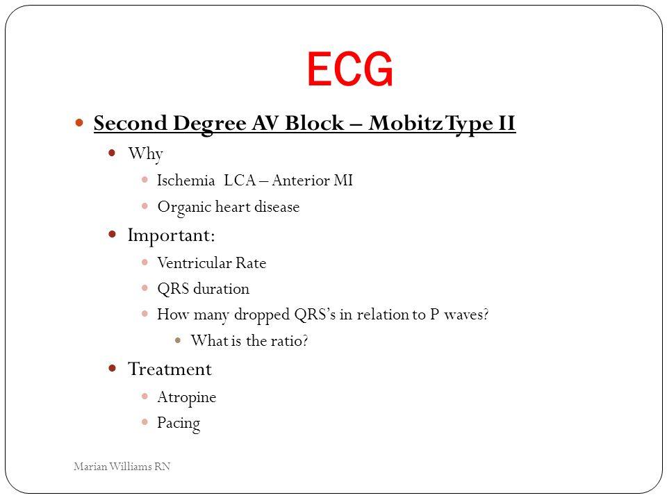 ECG Second Degree AV Block – Mobitz Type II Important: Treatment Why
