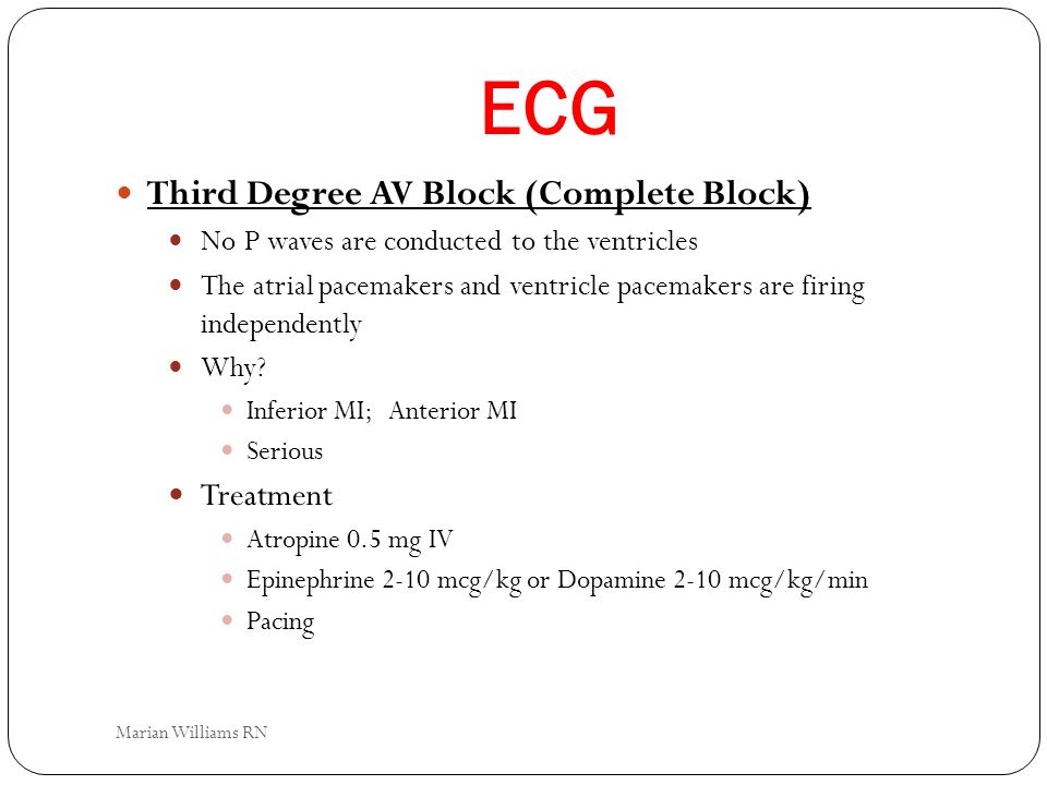 ECG Third Degree AV Block (Complete Block) Treatment
