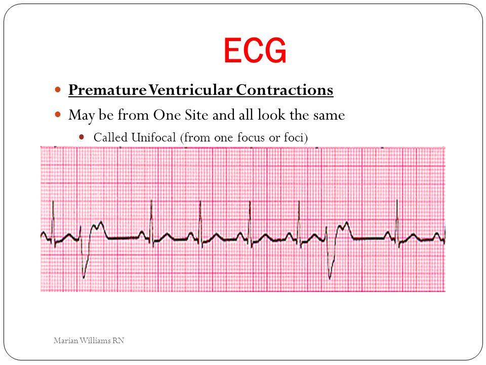 ECG Premature Ventricular Contractions
