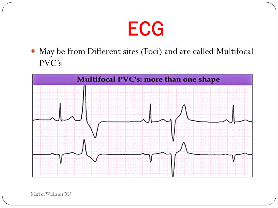 ECG May be from Different sites (Foci) and are called Multifocal PVC's