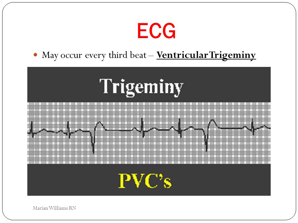ECG May occur every third beat – Ventricular Trigeminy