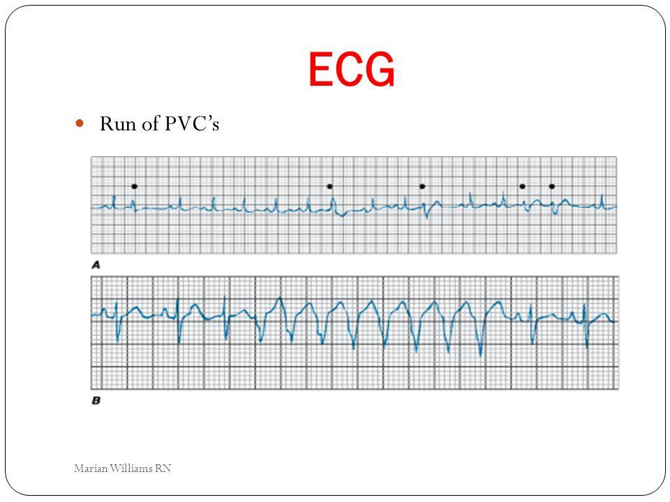 ECG Run of PVC's Marian Williams RN