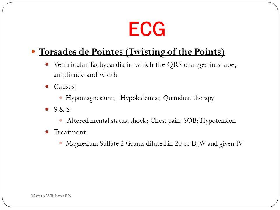 ECG Torsades de Pointes (Twisting of the Points)