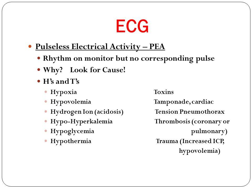 ECG Pulseless Electrical Activity – PEA