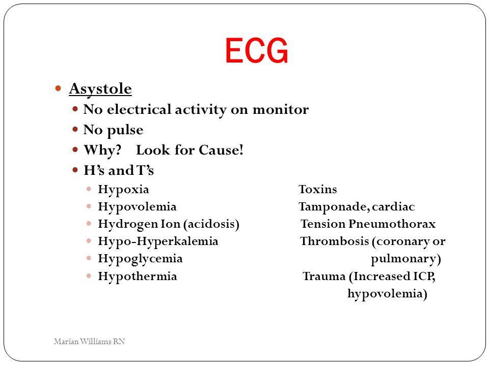 ECG Asystole No electrical activity on monitor No pulse
