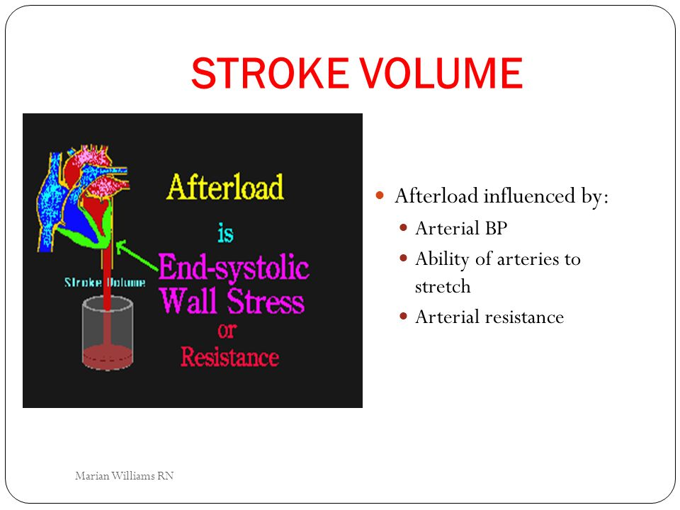 STROKE VOLUME Afterload influenced by: Arterial BP