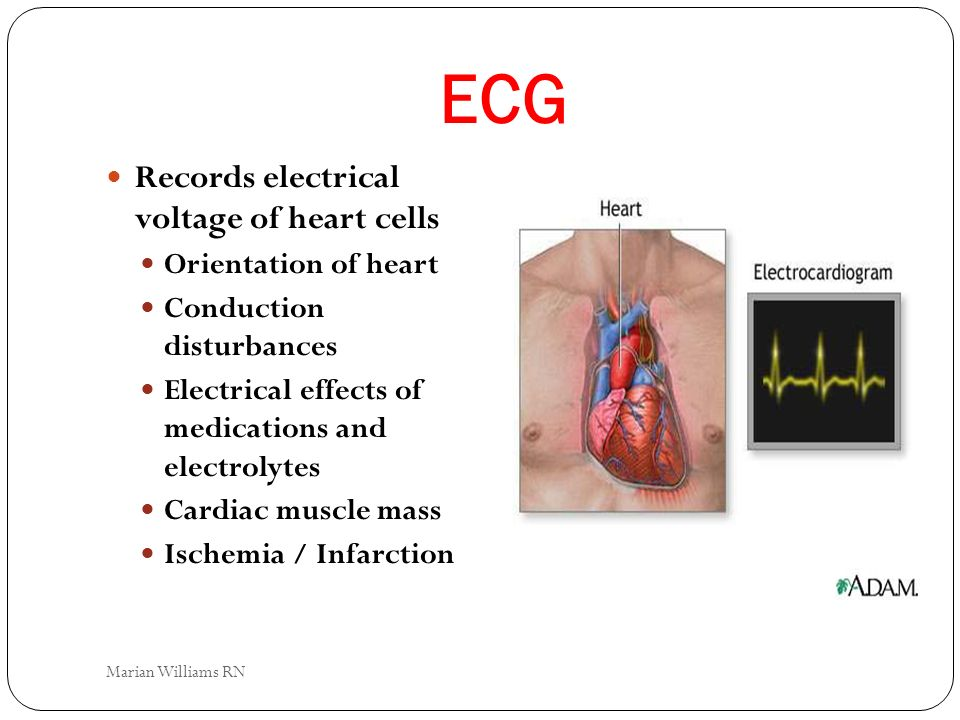 ECG Records electrical voltage of heart cells Orientation of heart
