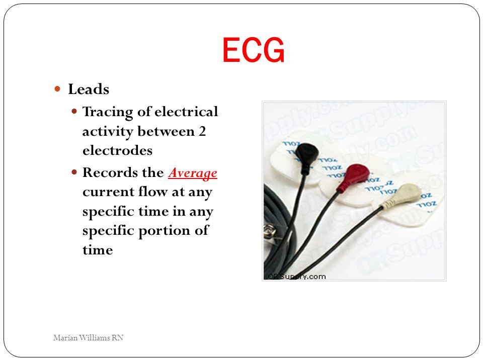 ECG Leads Tracing of electrical activity between 2 electrodes