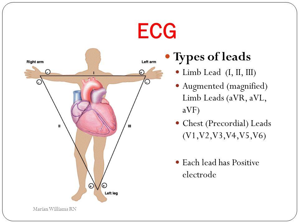 ECG Types of leads Limb Lead (I, II, III)