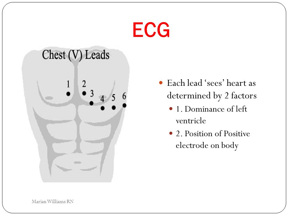 ECG Each lead 'sees' heart as determined by 2 factors