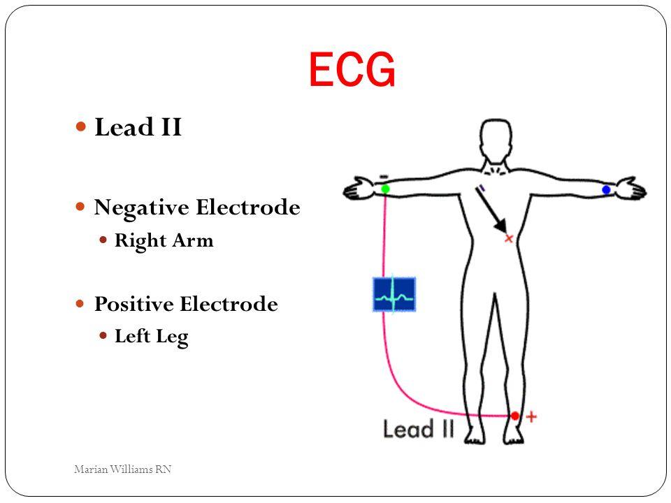 ECG Lead II Negative Electrode Positive Electrode Right Arm Left Leg