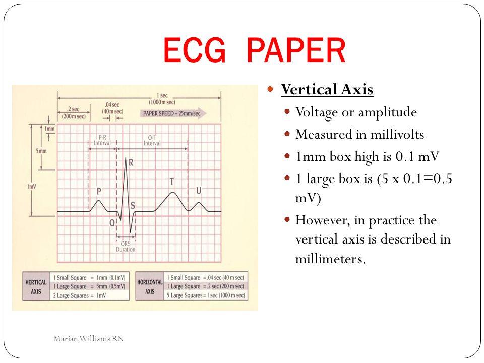 ECG PAPER Vertical Axis Voltage or amplitude Measured in millivolts