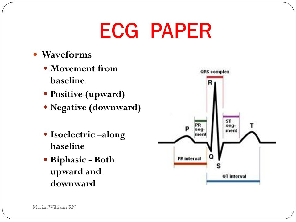 ECG PAPER Waveforms Movement from baseline Positive (upward)