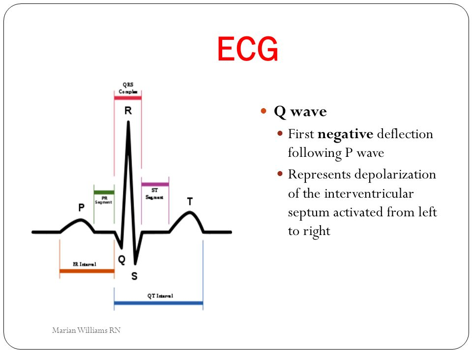 ECG Q wave First negative deflection following P wave