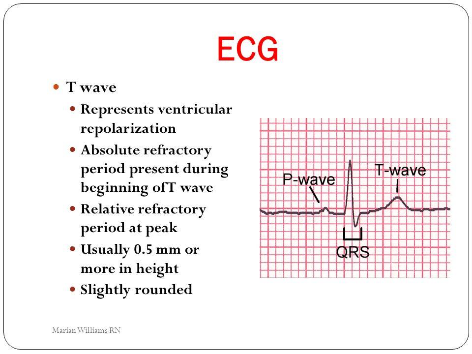 ECG T wave Represents ventricular repolarization